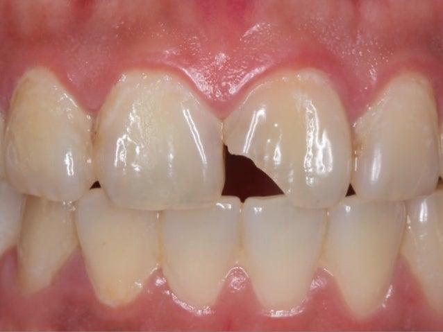 M-D線⾓角拉遠, ⽛牙⿒齒看起來較⽅方