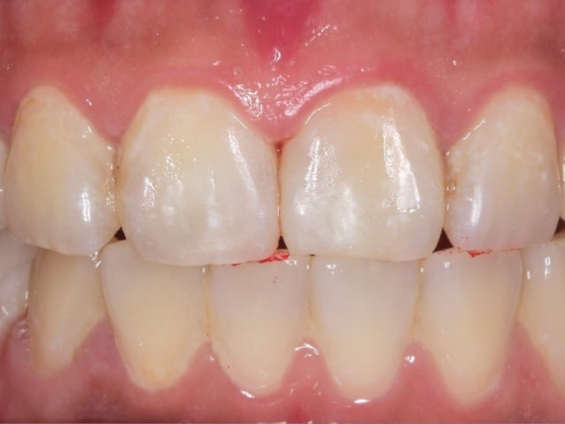 M-D線⾓角更近, ⽛牙⿒齒看起來更不⽅方… 但已不⾃自然了