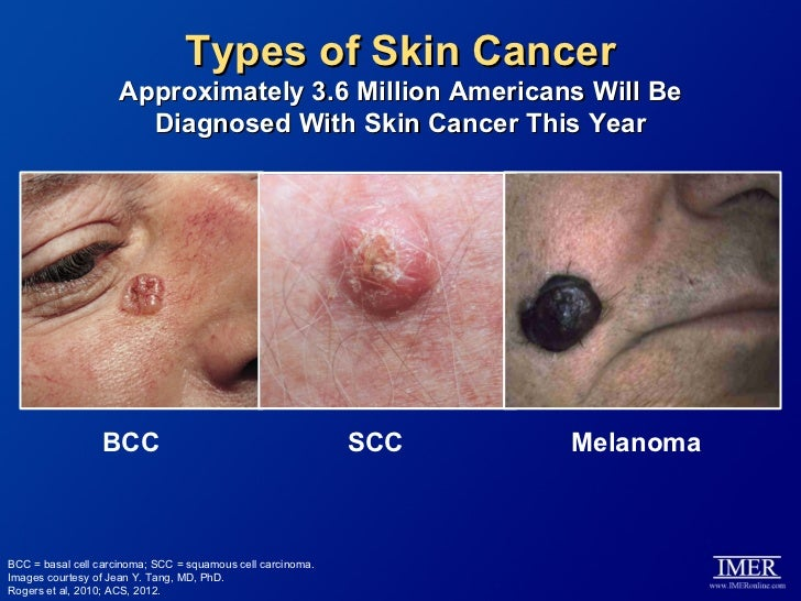 targeted therapy for the treatment of basal cell carcinoma and melano…, Human Body