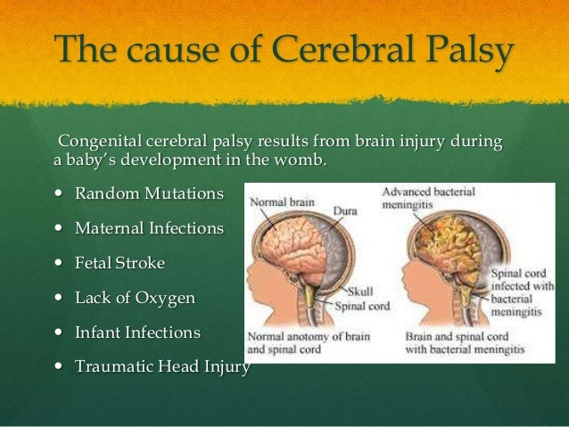 the causes and characteristics of the cerebral palsy disease Blood diseases – rh disease, an incompatibility between the blood of the mother and her fetus, can cause severe jaundice and brain damage, resulting in cerebral palsy rh disease usually can be prevented by giving an rh-negative woman an injection of a blood product called rh immune globulin around the 28th week of pregnancy and again after .