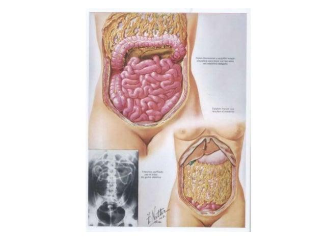 3. apendicitis aguda Slide 3