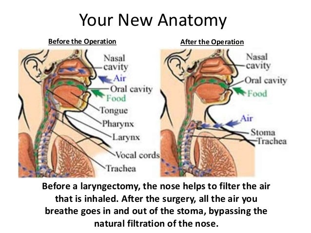 Laryngectomy[1][1]