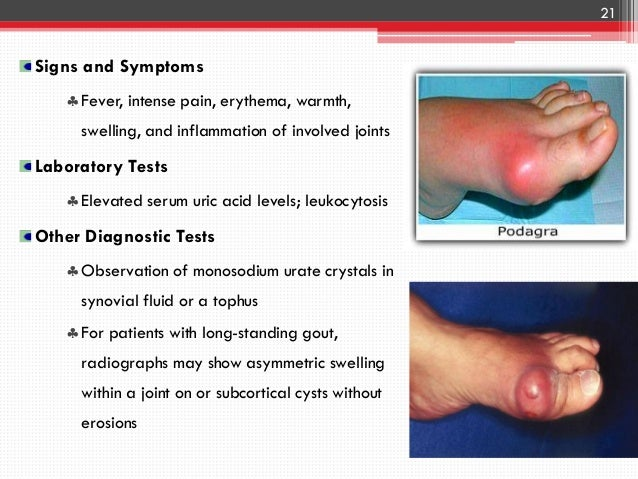 Gout Amp Hyperuricemia