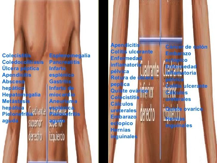 Colecistitis Coledocolitiasis Úlcera péptica Apendicitis Absceso hepático Hepatomegalia Metástasis hepática Pielonefritis ...