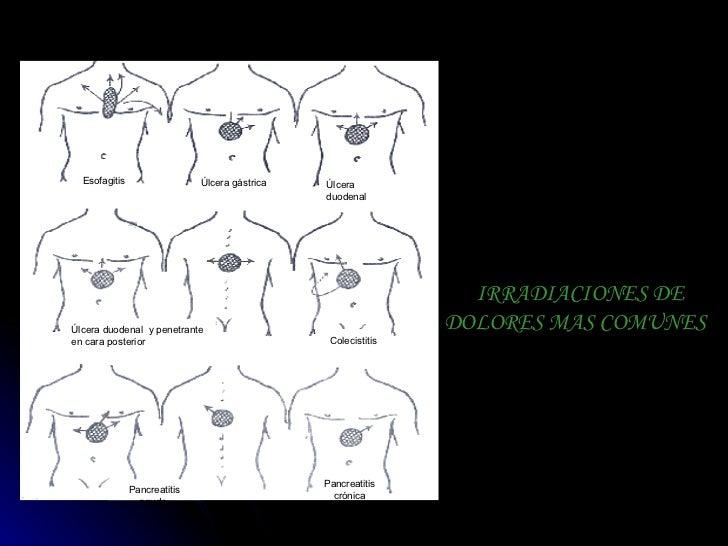 IRRADIACIONES DE DOLORES MAS COMUNES   Esofagitis   Úlcera   gástrica   Úlcera duodenal  Úlcera duodenal  y penetrante en ...