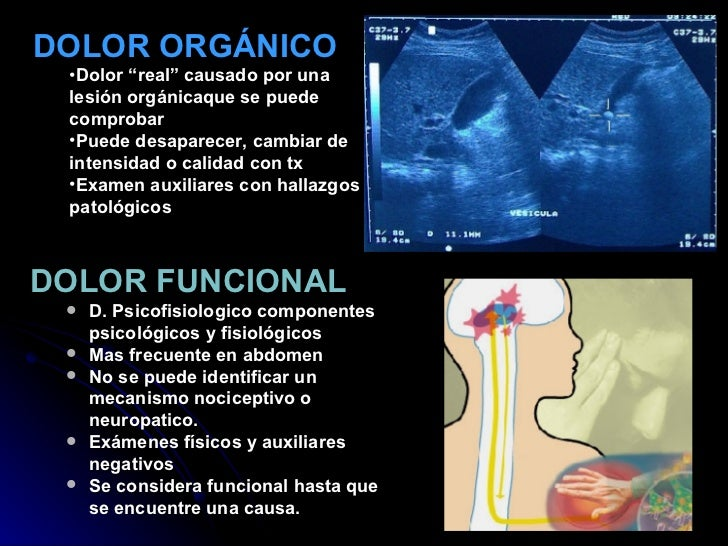 <ul><li>DOLOR FUNCIONAL  </li></ul><ul><ul><li>D. Psicofisiologico componentes psicológicos y fisiológicos </li></ul></ul>...