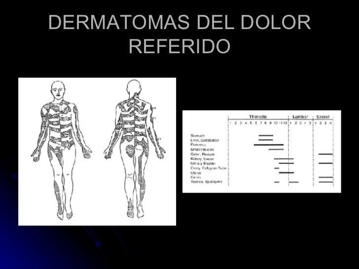DERMATOMAS DEL DOLOR REFERIDO