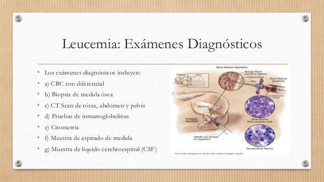 Leucemia: Exámenes Diagnósticos • Los exámenes diagnósticos incluyen: • a) CBC con diferencial • b) Biopsia de medula ósea...