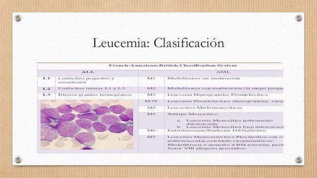 Leucemia: Clasificación French-American-British Classification System ALL AML L1 Linfocitos pequeños y monótonos M1 Mielob...
