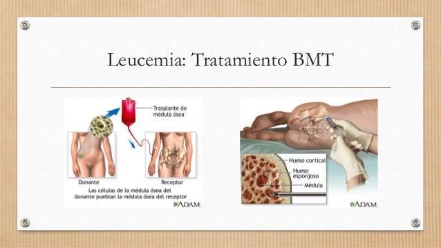 Leucemia: Tratamiento BMT