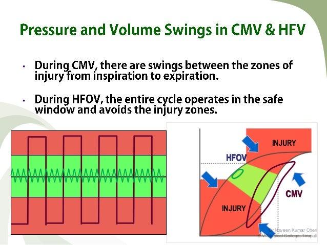 high frequency oscillatory ventilation pdf