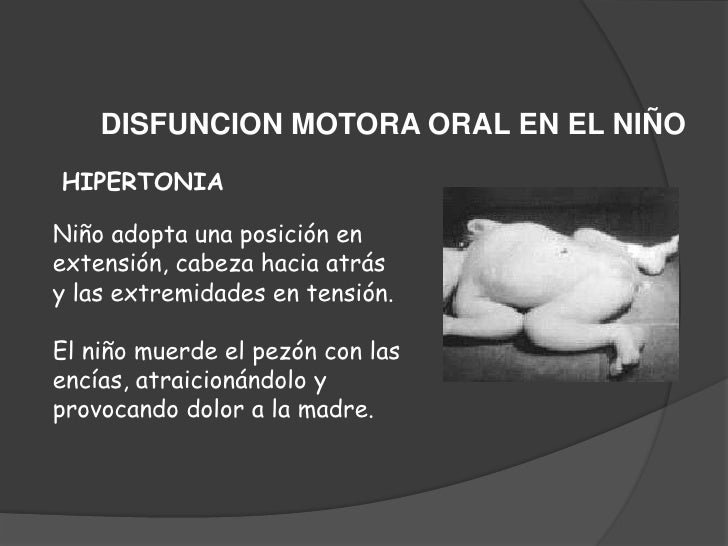 SITUACIONES ESPECIALES DE LA MADRE<br />DOLOR<br /><ul><li>El proceso de amamantar no debe doler.