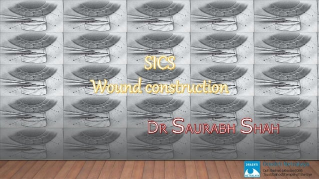 SICS WOUND CONSTRUCTION _ Beginner's Guide