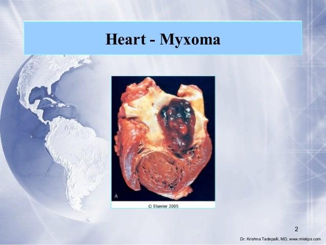 Heart - Myxoma  2 Dr. Krishna Tadepalli, MD, www.mletips.com
