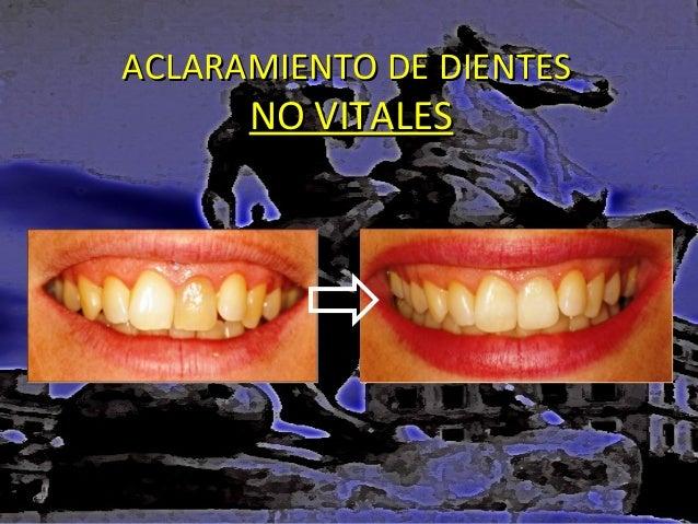ACLARAMIENTO DE DIENTES  NO VITALES