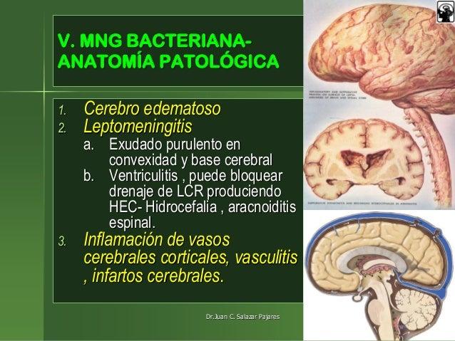 INFECCIONES DEL SNC - MENINGITIS BACTERIANA