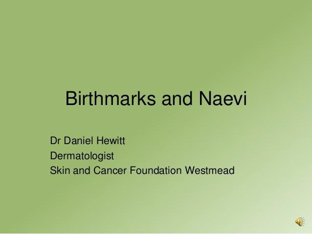 Birthmarks and NaeviDr Daniel HewittDermatologistSkin and Cancer Foundation Westmead