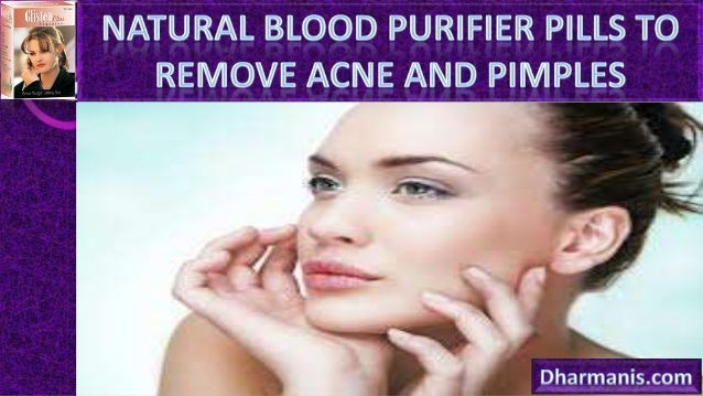 •  Pimples, zits or acne, is no doubt a very depressing skin problem that can leave ugly scars on your skin.  •  Luckily, ...
