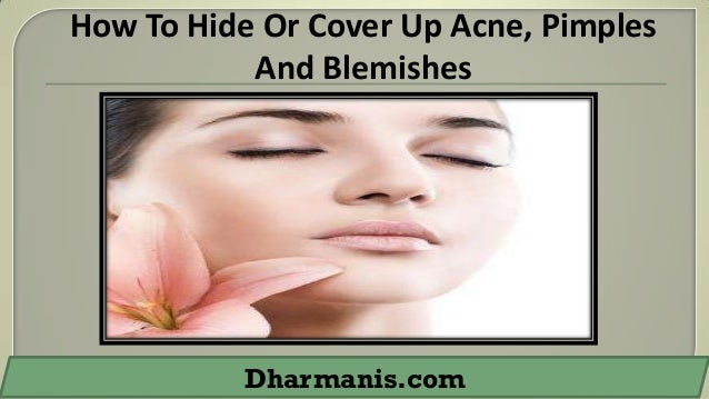 How To Hide Or Cover Up Acne, Pimples And Blemishes  Dharmanis.com