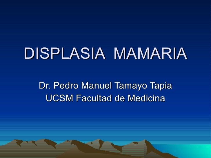 DISPLASIA  MAMARIA Dr. Pedro Manuel Tamayo Tapia UCSM Facultad de Medicina
