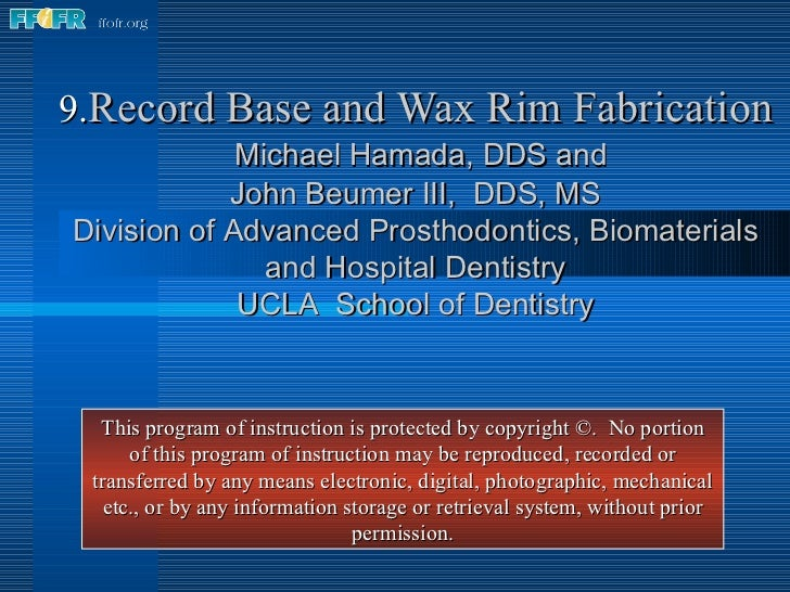 9. Record Base and Wax Rim Fabrication   Michael Hamada, DDS and John Beumer III,  DDS, MS Division of Advanced Prosthodon...