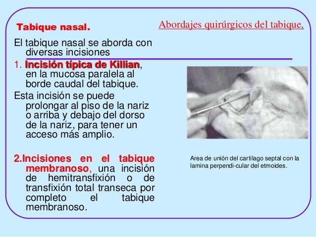 intranasal corticosteroids for allergic rhinitis superior relief