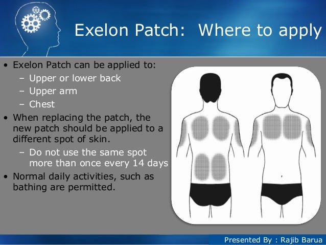 What does exelon patch do