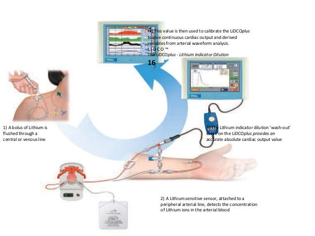 A Line Arterial Monitoring : Haemodynamic monitoring minati
