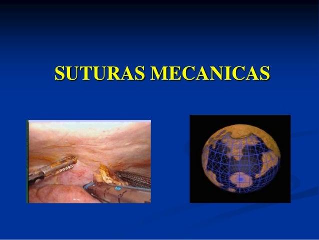 SUTURAS MECANICAS
