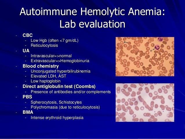 anemia and peeing Hemolytic