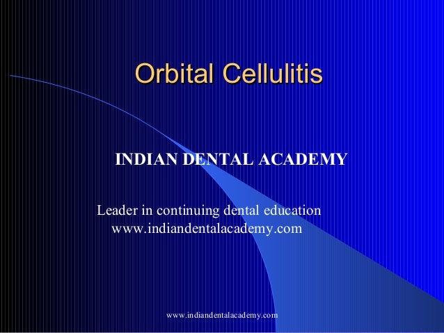 Orbital Cellulitis INDIAN DENTAL ACADEMY Leader in continuing dental education www.indiandentalacademy.com  www.indiandent...
