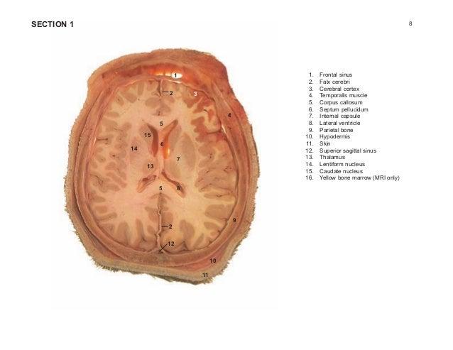 Cross sectional anatomy atlas