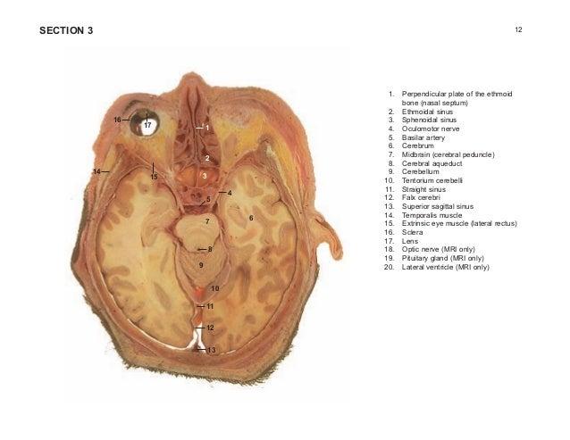 Miniatlas Of Human Cross Sectional Anatomy