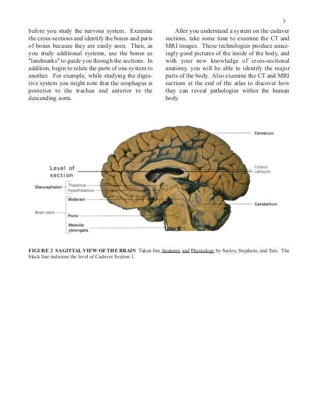 Miniatlas of Human Cross-Sectional Anatomy