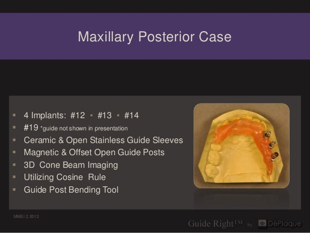 Maxillary Posterior Case   4 Implants: #12 ▪ #13 ▪ #14   #19 *guide not shown in presentation   Ceramic & Open Stainles...
