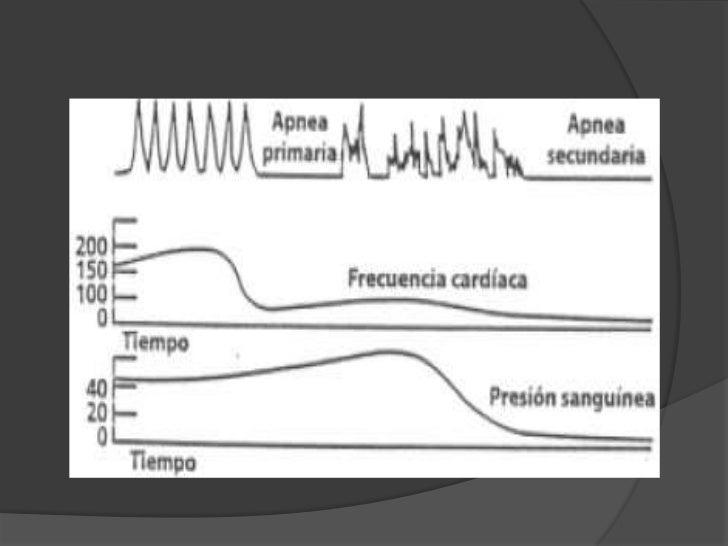 Respuesta del RN<br />Redistribución<br />Arteriolas del IRMP se contraen.<br />Flujo sanguíneo cardíaco  y cerebral perma...