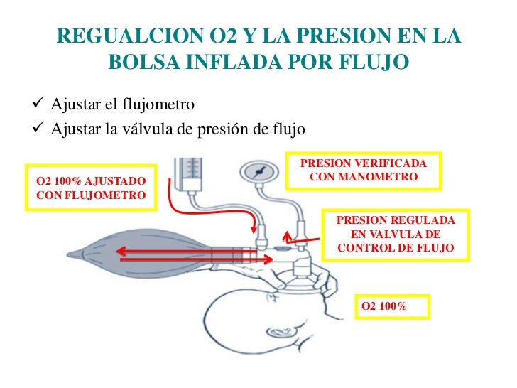 Tipos de bolsas RCP neonatal<br /><ul><li>Bolsa inflada por flujo:</li></ul>(Bolsa de Anestesia)<br />Se llena solo cuando...