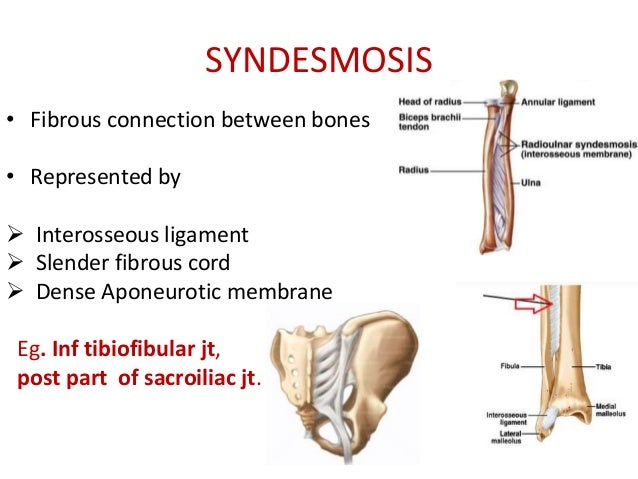 Joints In this case diaphysis and epiphysis of long bone. joints