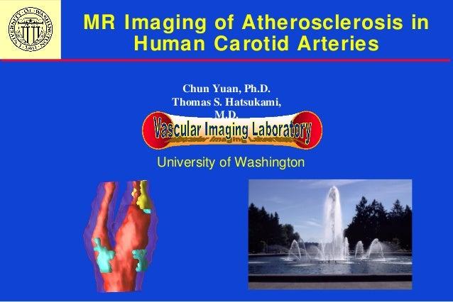 MR Imaging of Atherosclerosis in Human Carotid Arteries University of Washington Chun Yuan, Ph.D. Thomas S. Hatsukami, M.D.
