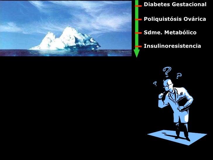 Poliquistósis Ovárica Insulinoresistencia Sdme. Metabólico Diabetes Gestacional