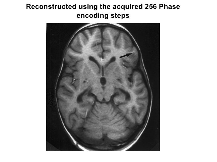 Reconstructed using the acquired 256 Phase encoding steps