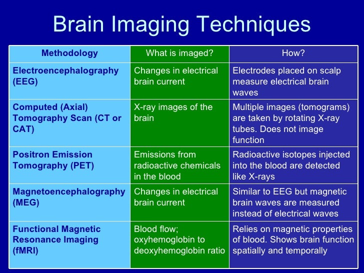 White Paper Advantages Of Volumetric Cone Beam Imaging For Orthopaedic Extremity Exams as well Validation Master Plan together with Global medical further 183497 likewise NeuroeconCBDP208. on computed tomography system