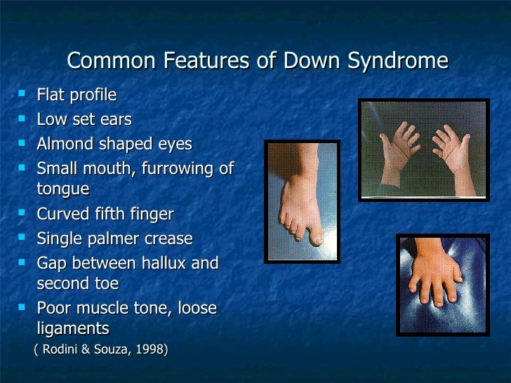 down syndrome features