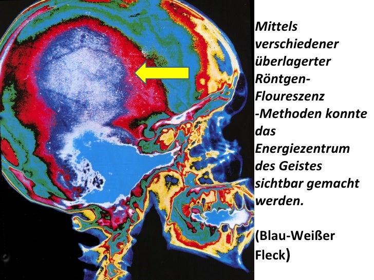 Mittels verschiedener überlagerter Röntgen-Floureszenz -Methoden konnte das Energiezentrum  des Geistes sichtbar gemacht w...