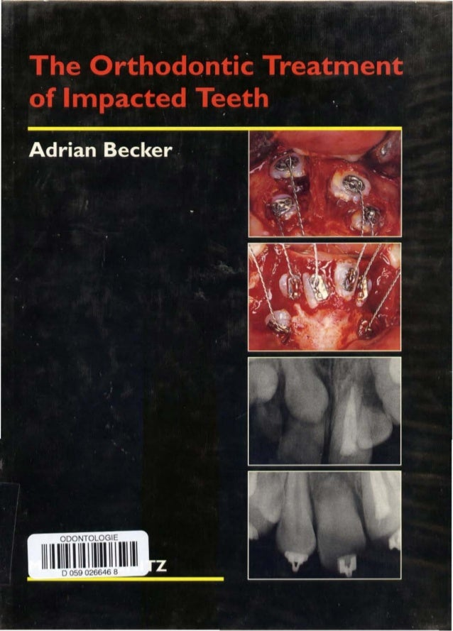 The Orthodontic Treatment of Impacted Teeth ADRIAN BECKER BOS, LOS RCS, 000 Re ps Clinical Associate Professor, Department...
