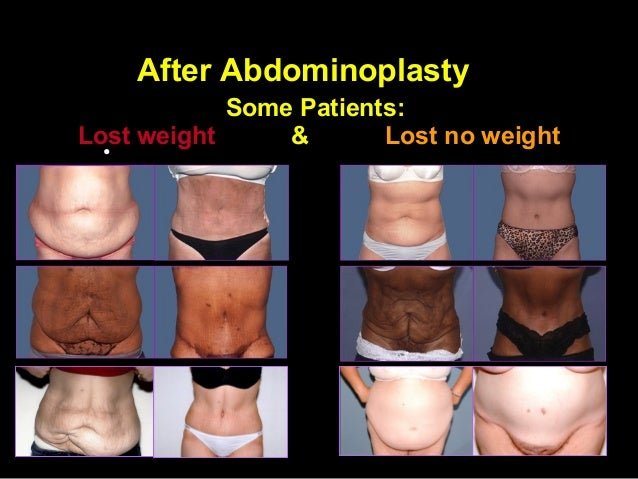 A Abdominoplasty