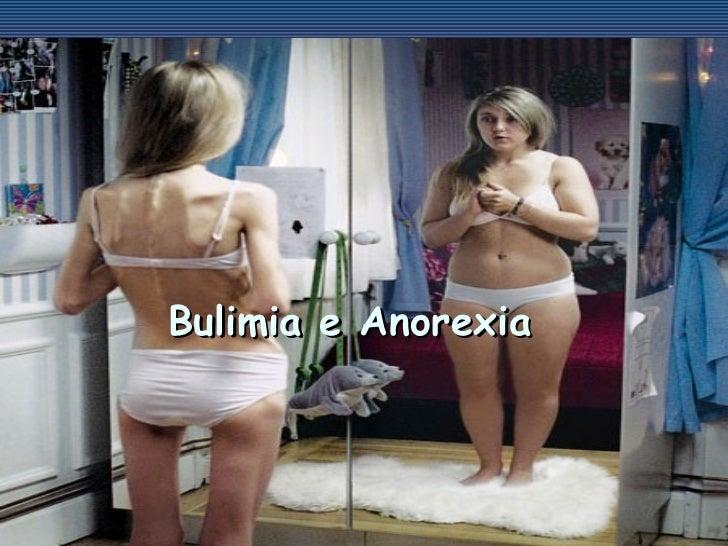 <ul><li>Bulimia e Anorexia </li></ul>