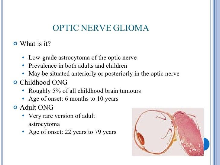 gliomas in adults