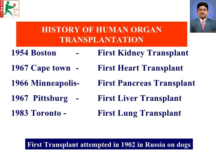 History of heart transplants