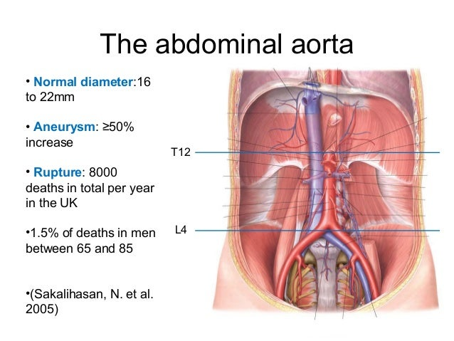 a rough guide to abdominal aortic aneurysms, Human Body